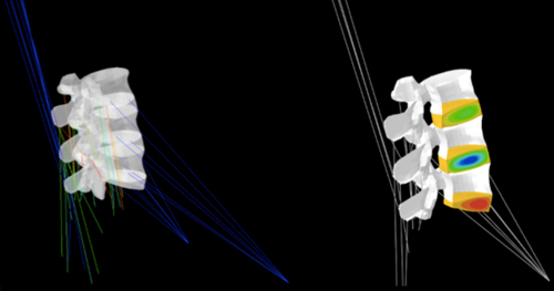 Prediction of mutual interactions between strain-induced muscle activation (Left) and intervertebral disc pressurization (right) during night rest simulations in a finite element model of the lower lumbar spine (L3 to L5-S1 intervertebral disc)