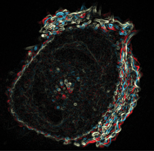 Movement of the actin cytoskeleton of a breast myoepithelial cell, shown by superimposing images of the actin cytoskeleton in different timeframes.