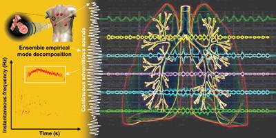 Advances In Cardiac Signal Processing Pdf